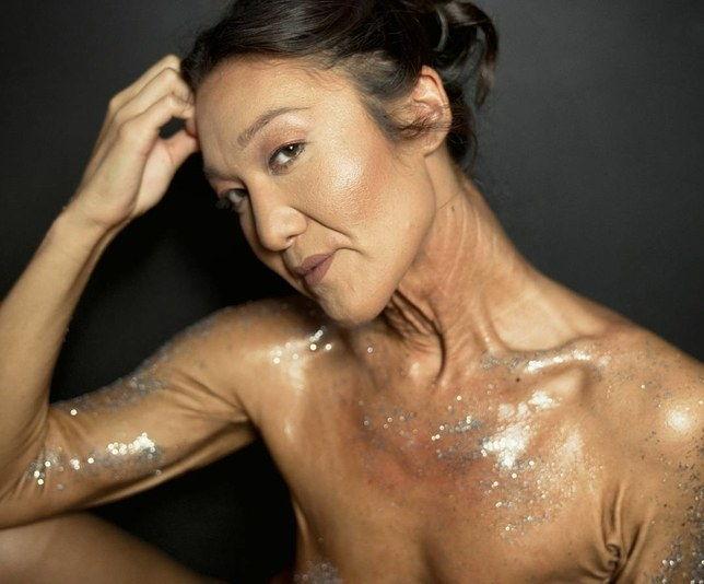 elastisk hud syndrom
